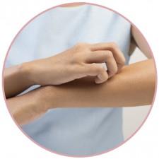 Алергії і подразнення шкіри: як полегшити симптоми